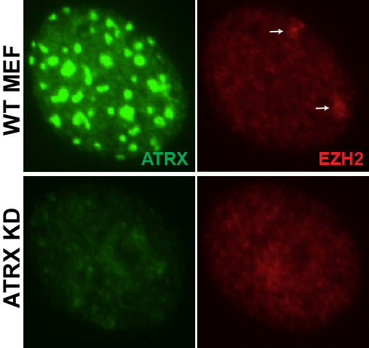 Figure 2. ATRX dependent PRC2 enrichment on the inactive X chromosome