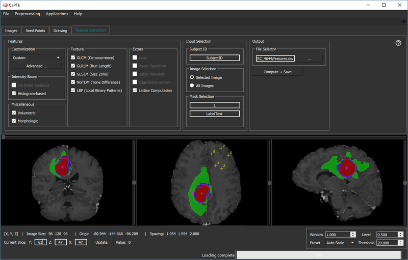 CaPTk Screenshot showing example annotated ROIs and initialized tumor