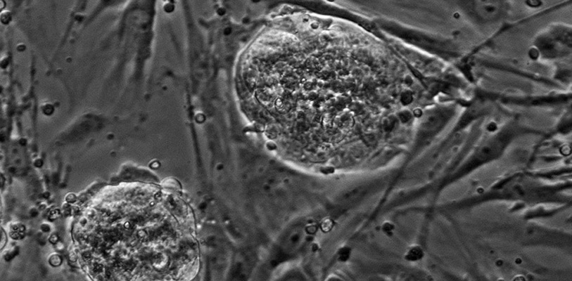 Induced Pluripotent Stem Cell Core Facility